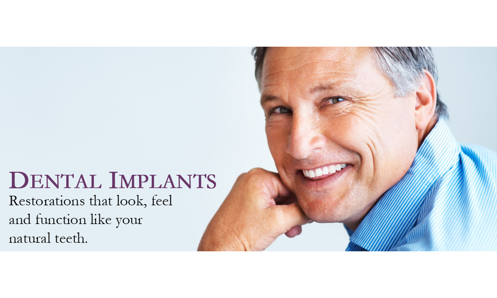 Dnetal 20implants 20specialists 20holladay 20dental 20excellence
