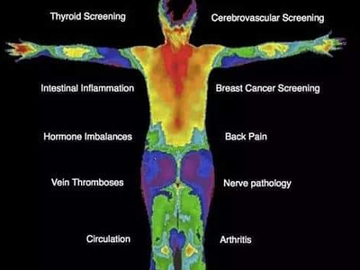 Thermography whole 20body 20image
