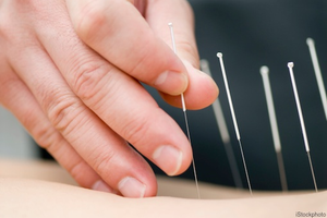 Acupuncture in Wilmington NC